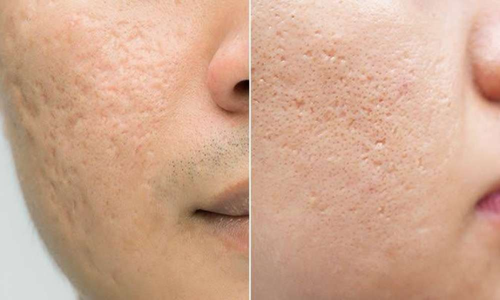 How To Remove Scars and Acne Scars Off The Skin