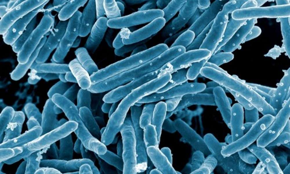 Tuberculosis: Mode of Transmission, Treatments, Prevention